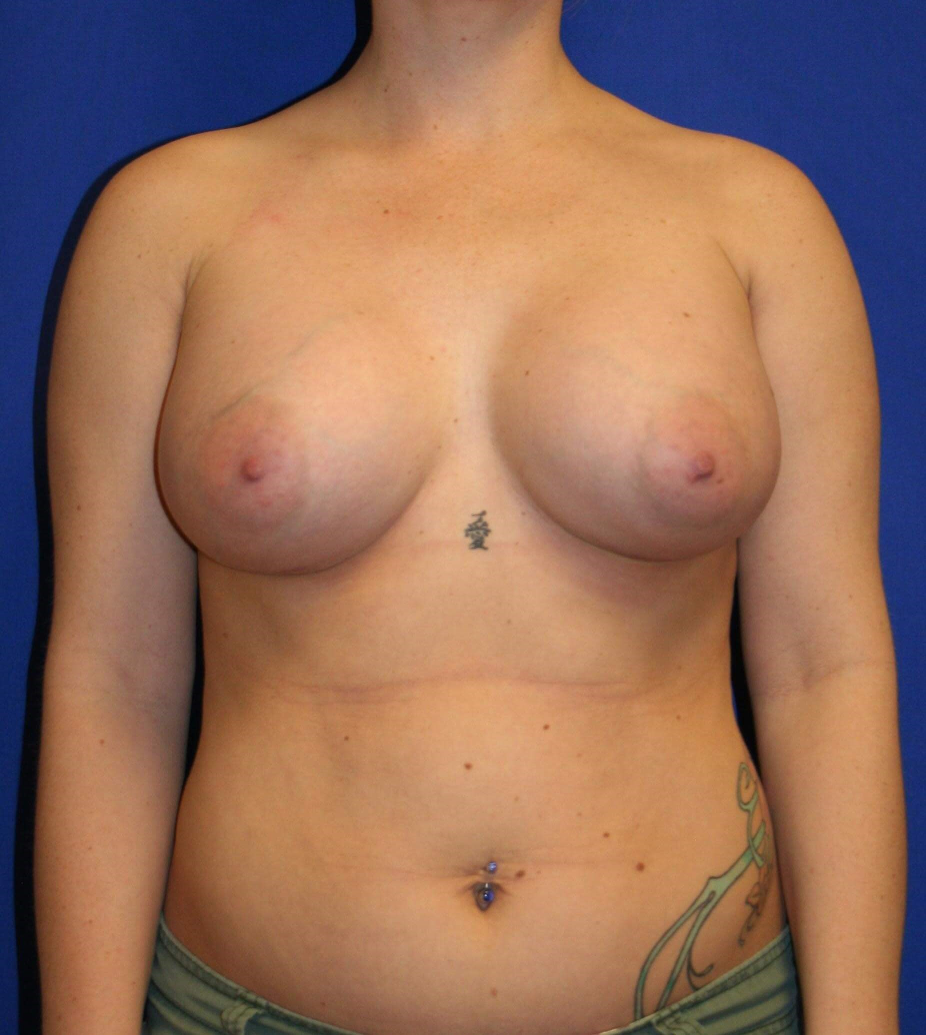 Breast Augmentation-Front After