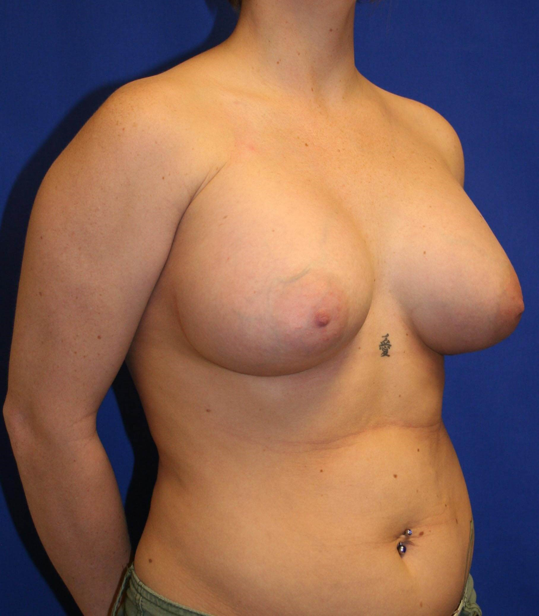 Breast Augmentation-Oblique After