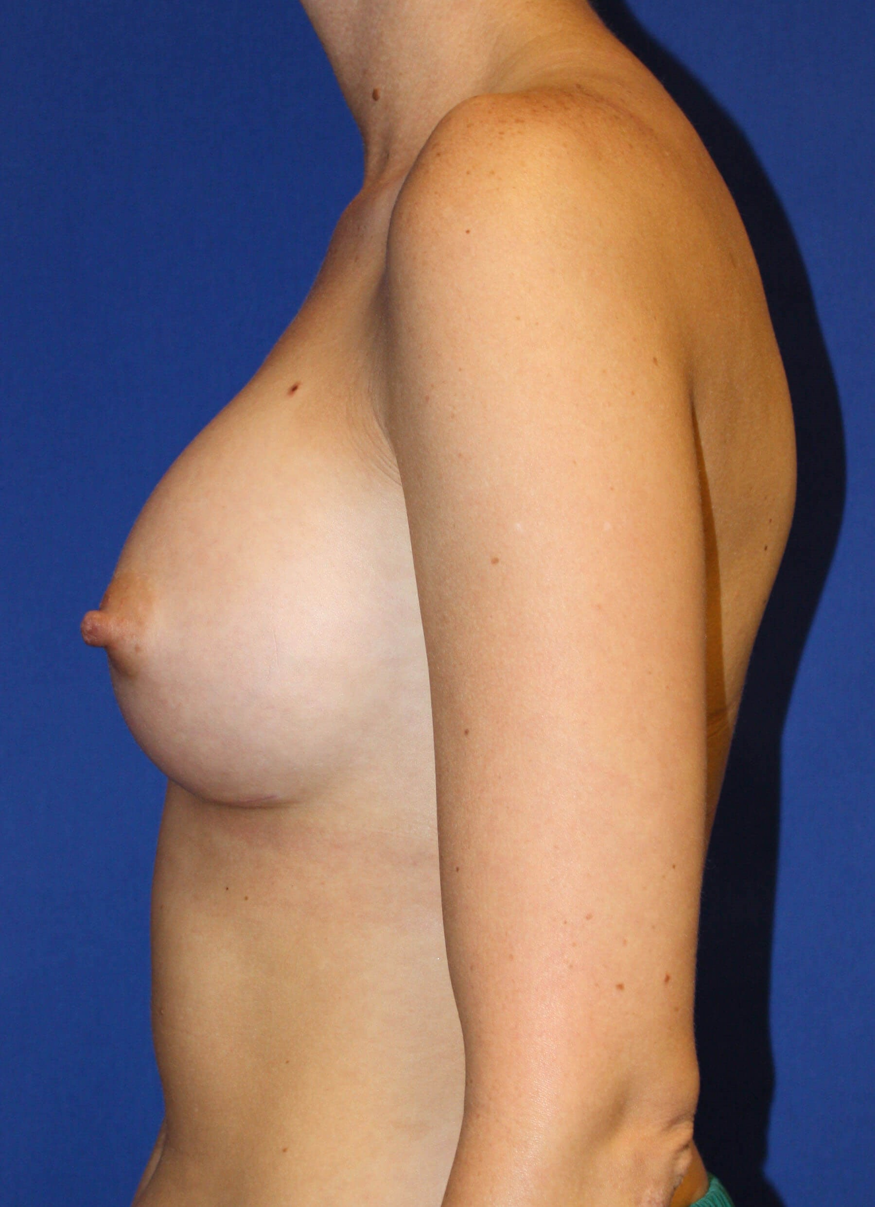 Breast Augmentation-Lateral After