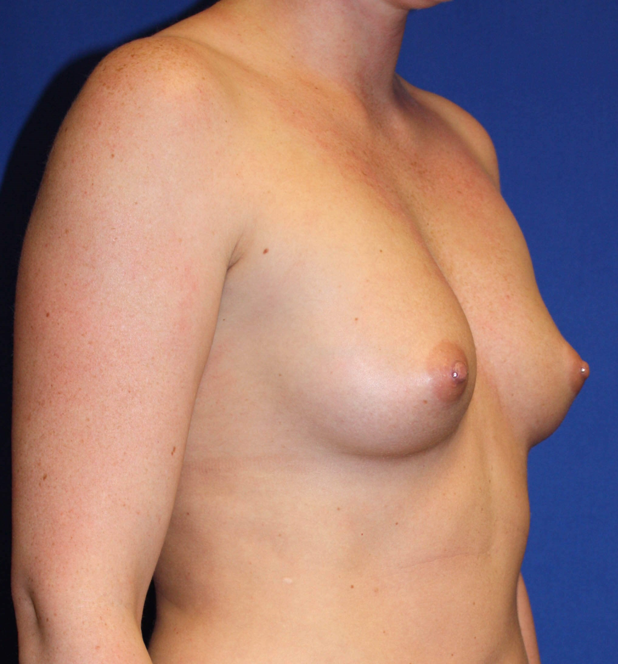 Breast Augmentation-Oblique Before