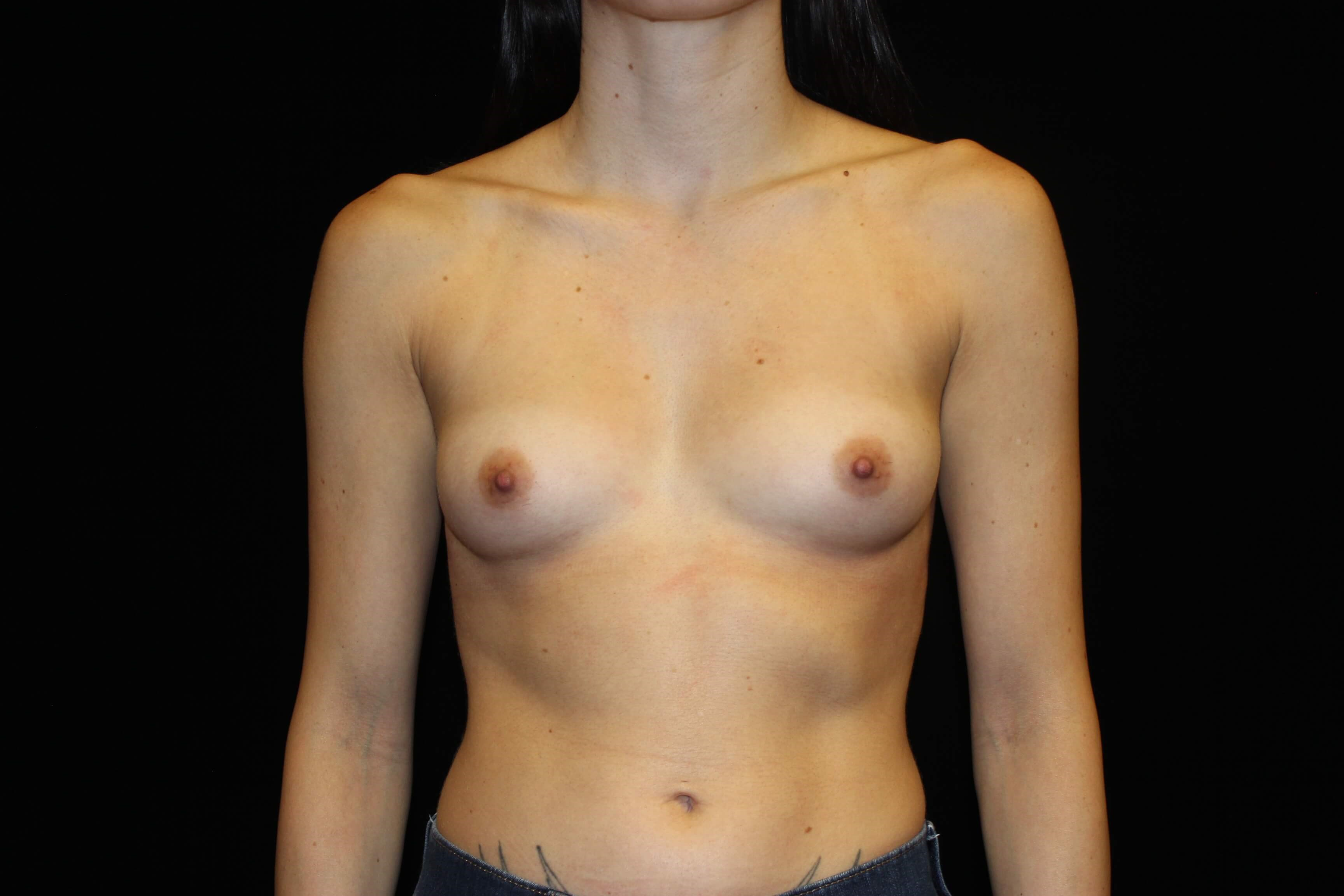 Breast Augmentation-Front Before