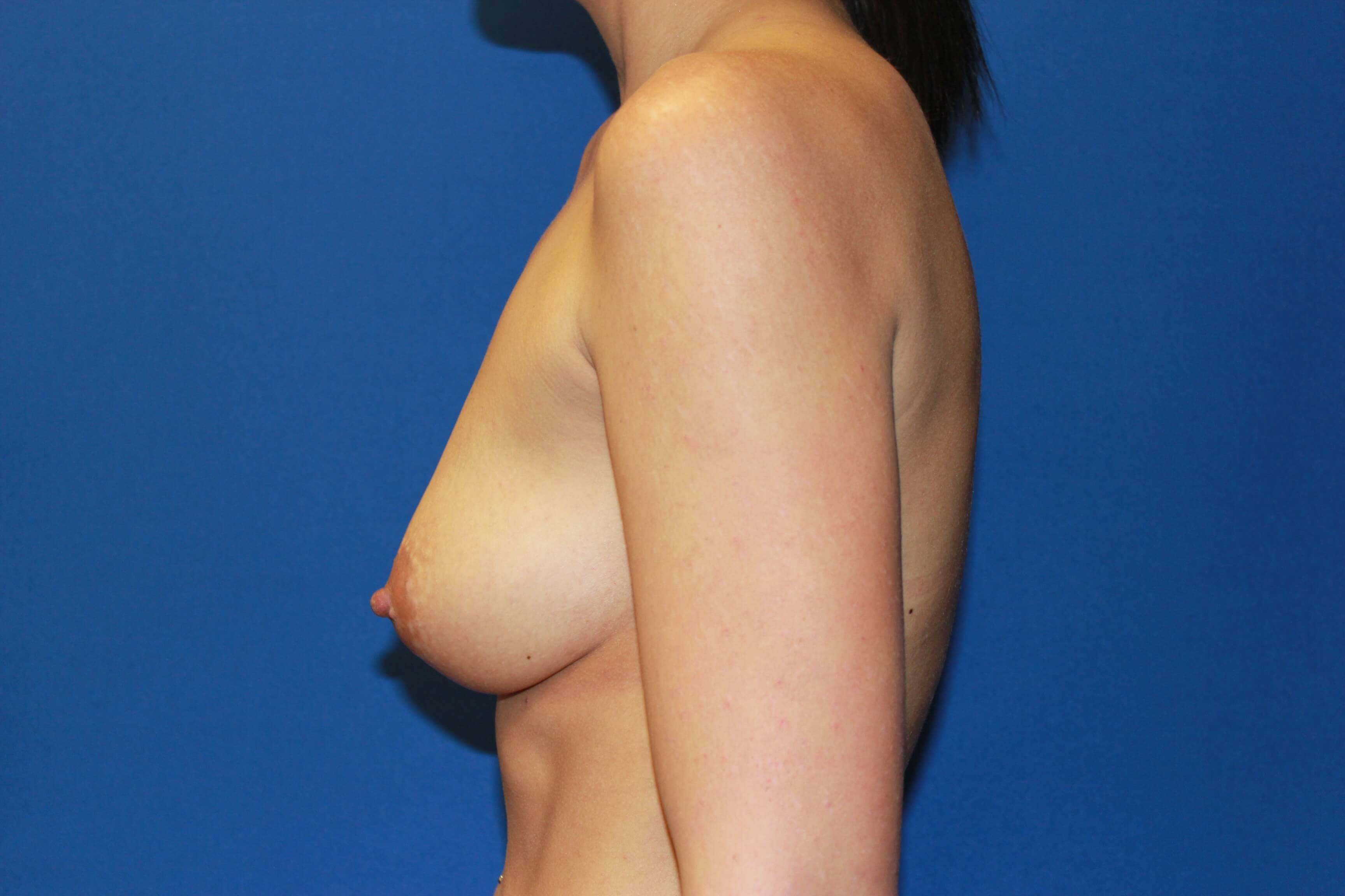 Breast Augmentation-Lateral Before