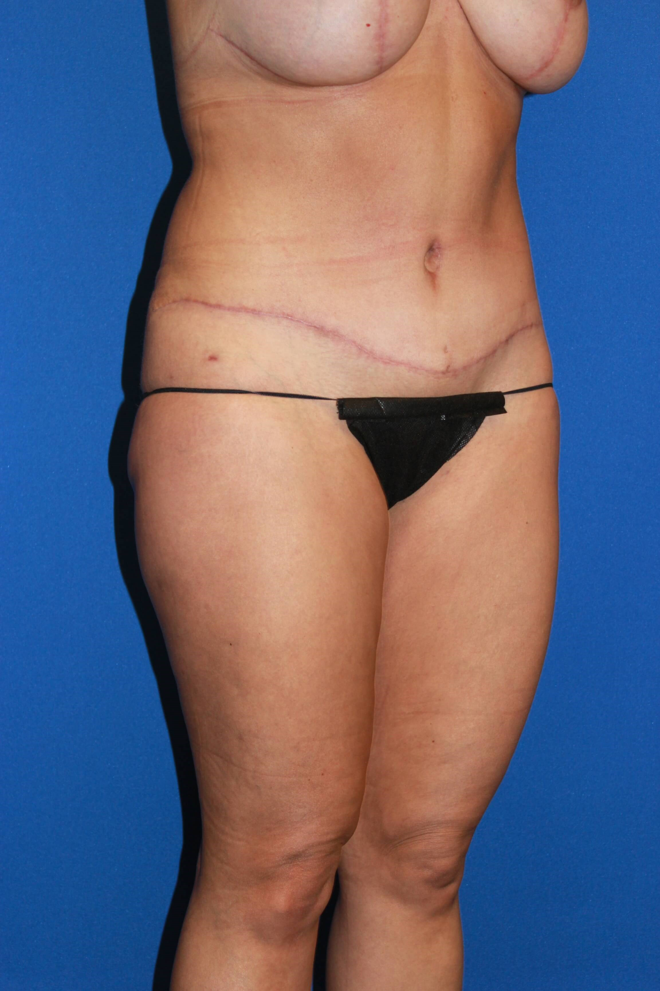 Mommy Makeover-Oblique After