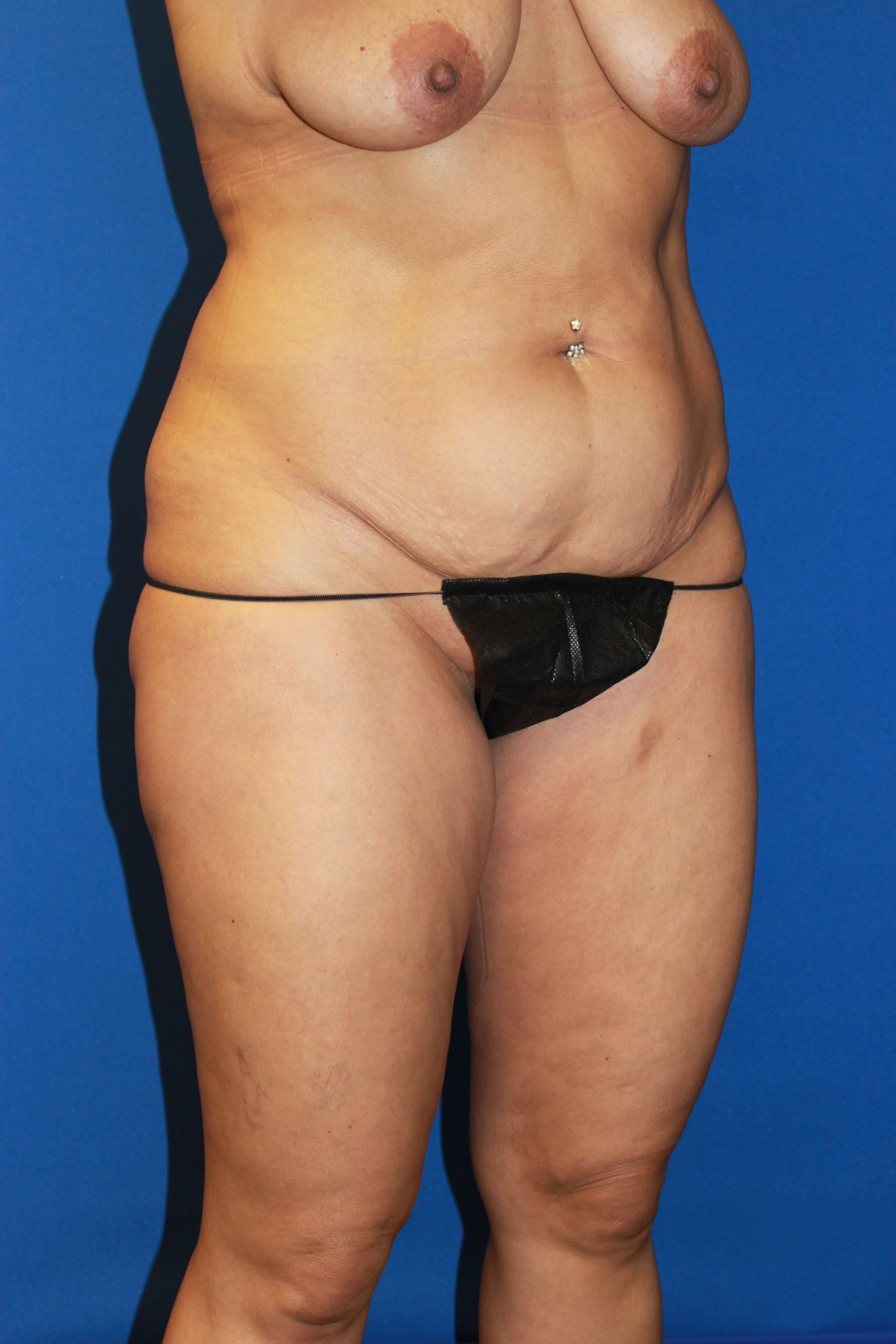Mommy Makeover-Oblique Before