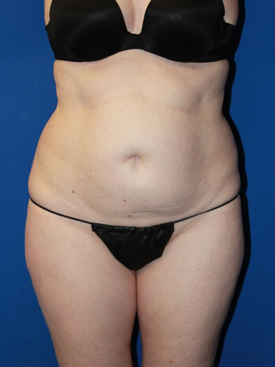 Tummy Tuck-Front Before