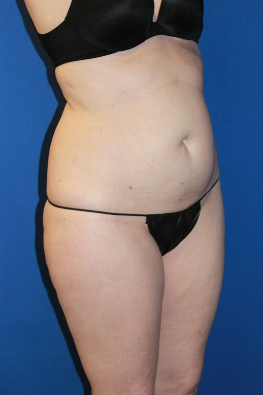 Tummy Tuck-Oblique Before