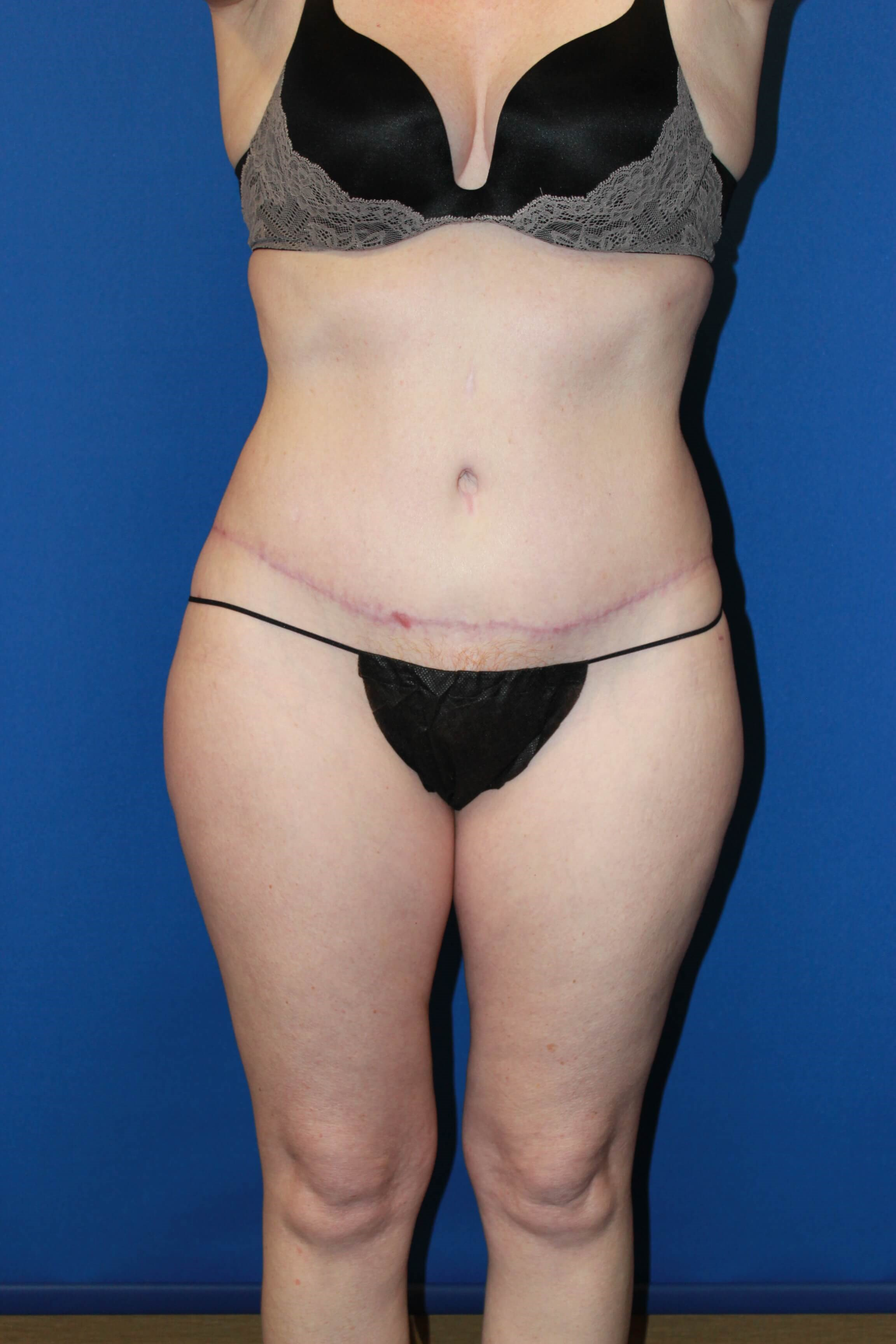 Tummy Tuck-Front After