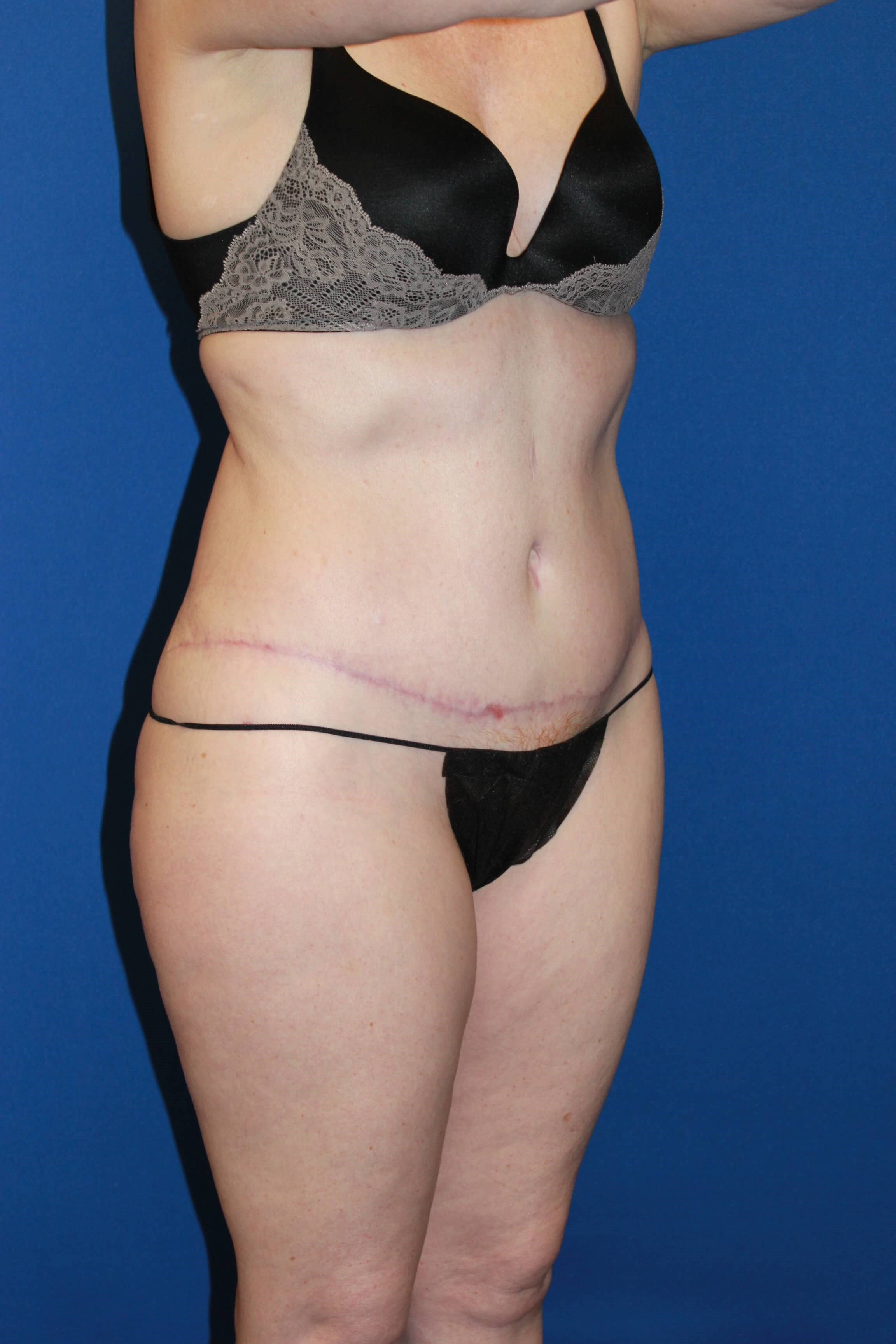 Tummy Tuck-Oblique After
