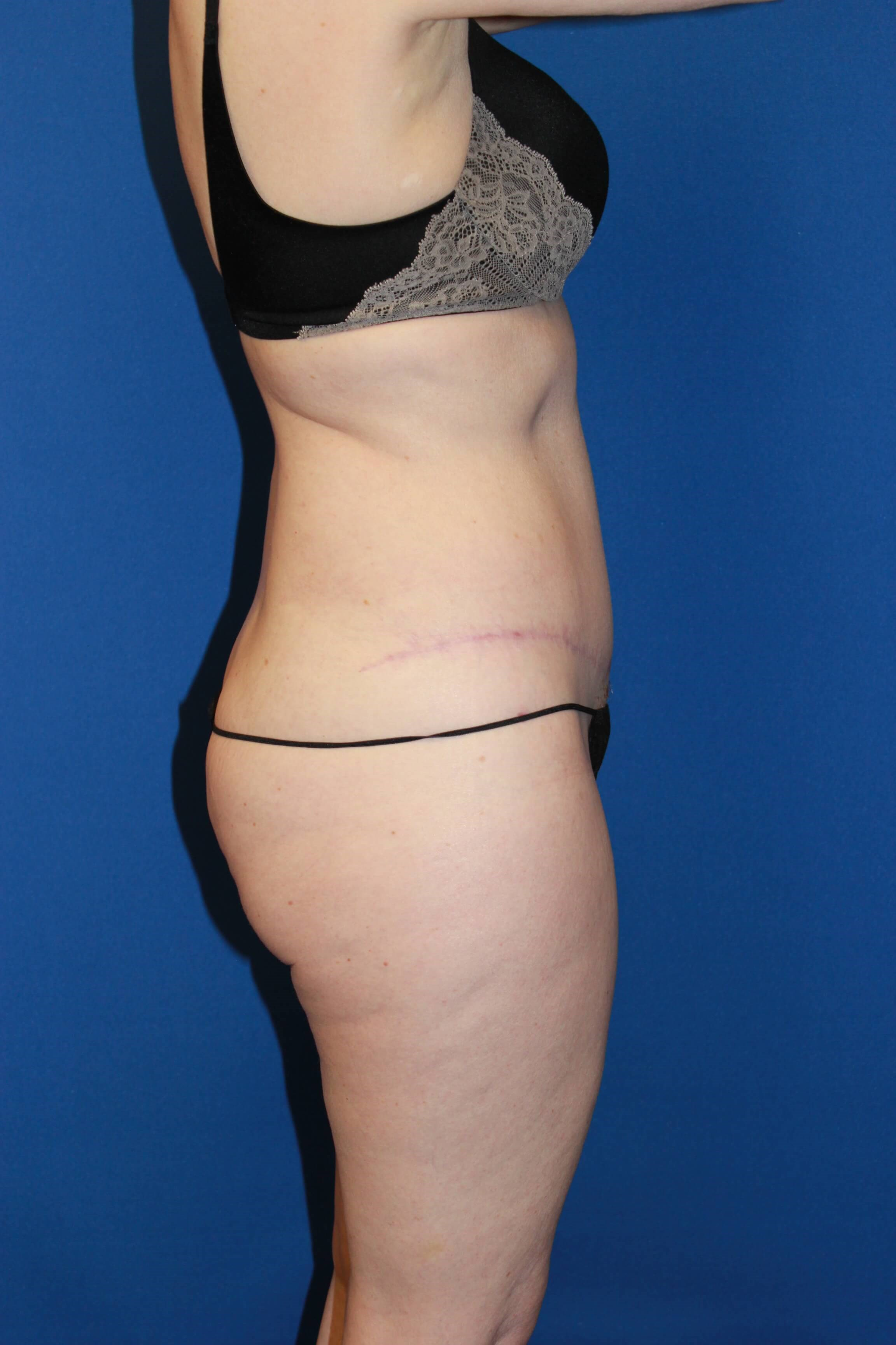 Tummy Tuck-Lateral After
