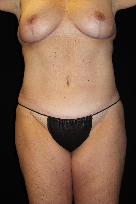 Tummy Tuck & Breast Lift-Front After