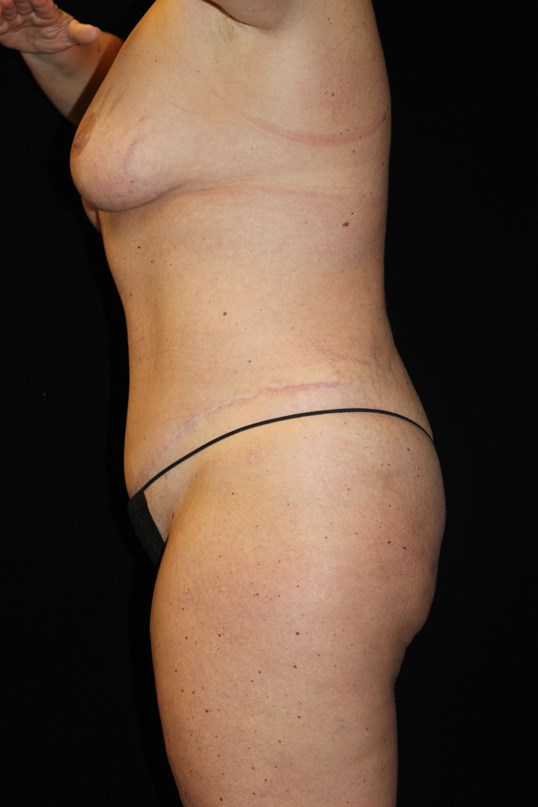 Tummy Tuck & Breast Lift After