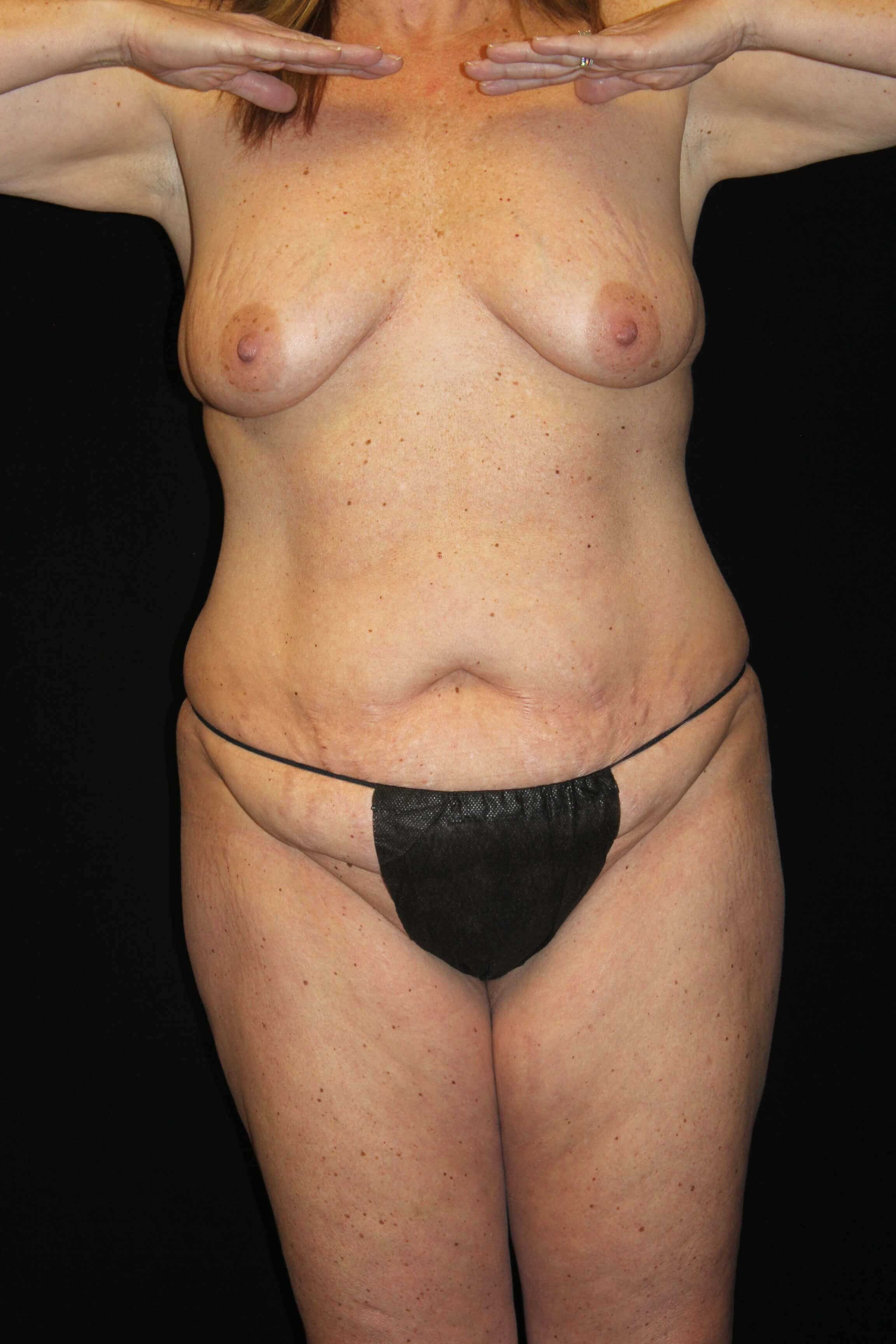 Tummy Tuck & Breast Lift-Front Before