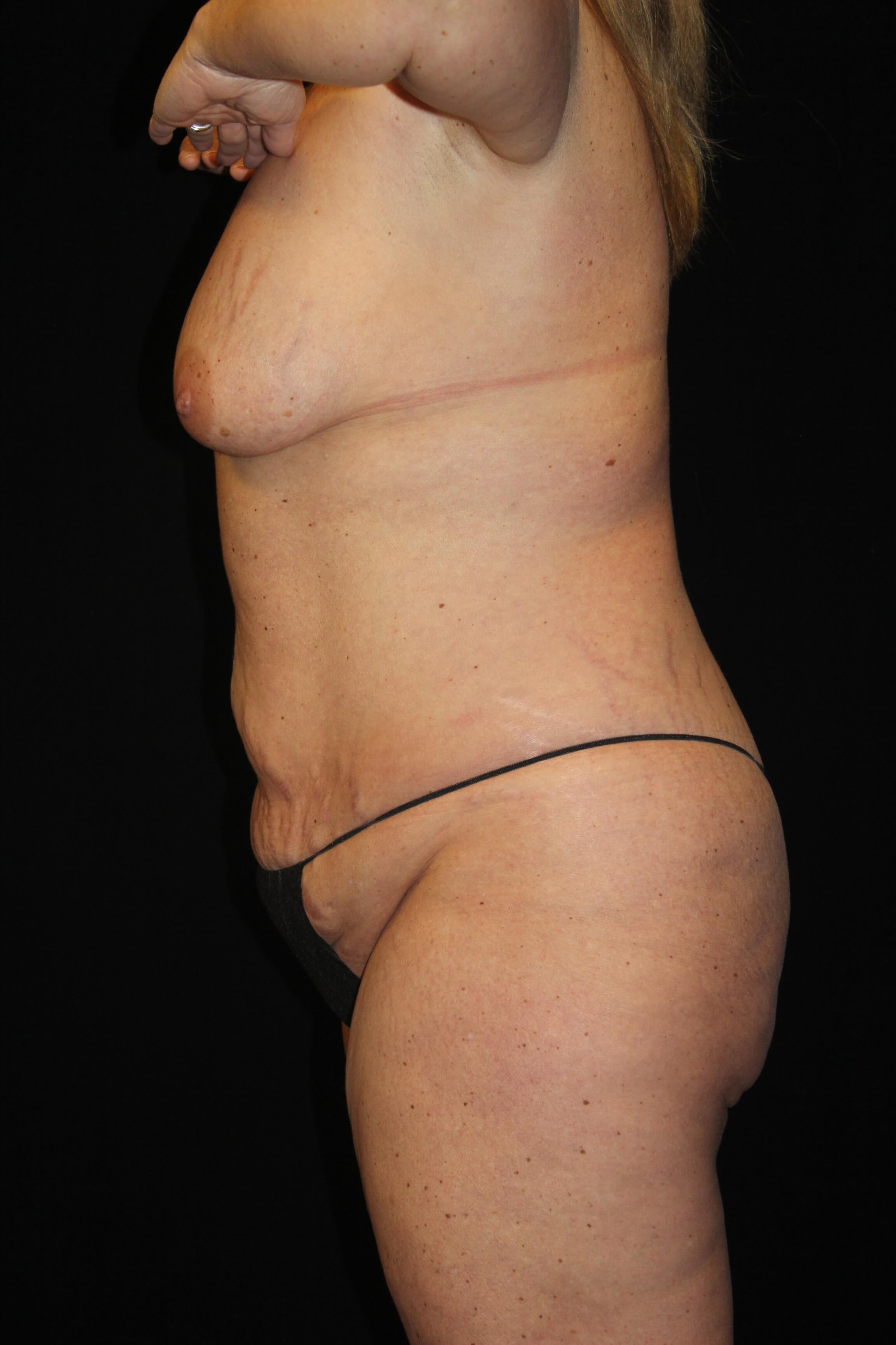 Tummy Tuck & Breast Lift Before