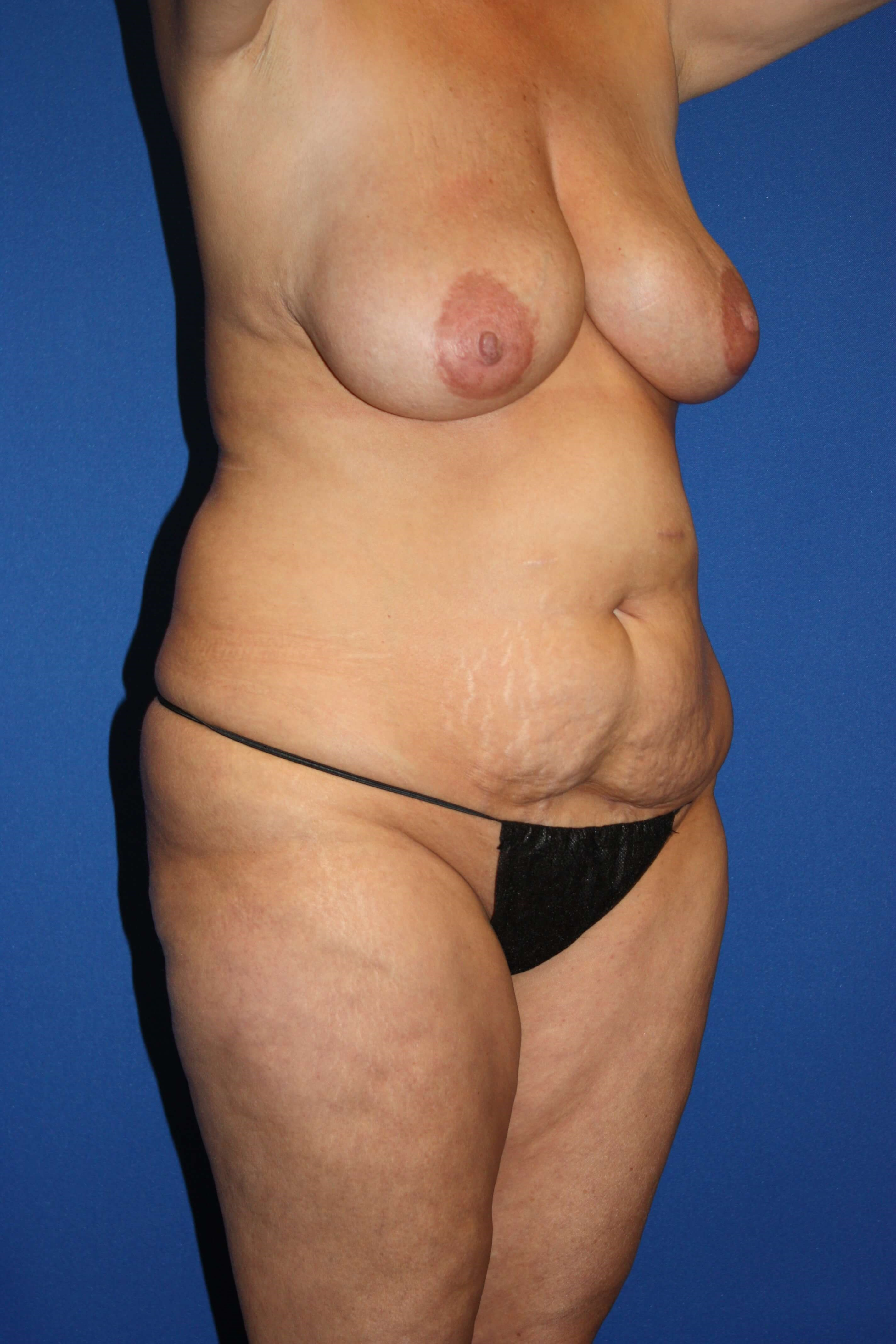Tummy Tuck, Breast Lift & Lipo Before