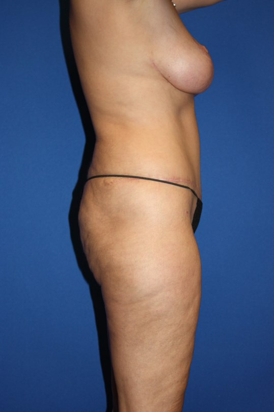 Tummy Tuck, Breast Lift & Lipo After