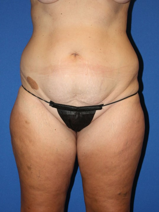 Tummy Tuck, Liposuction-Front Before