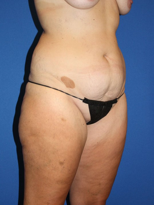 Tummy Tuck, Liposuction-Angled Before