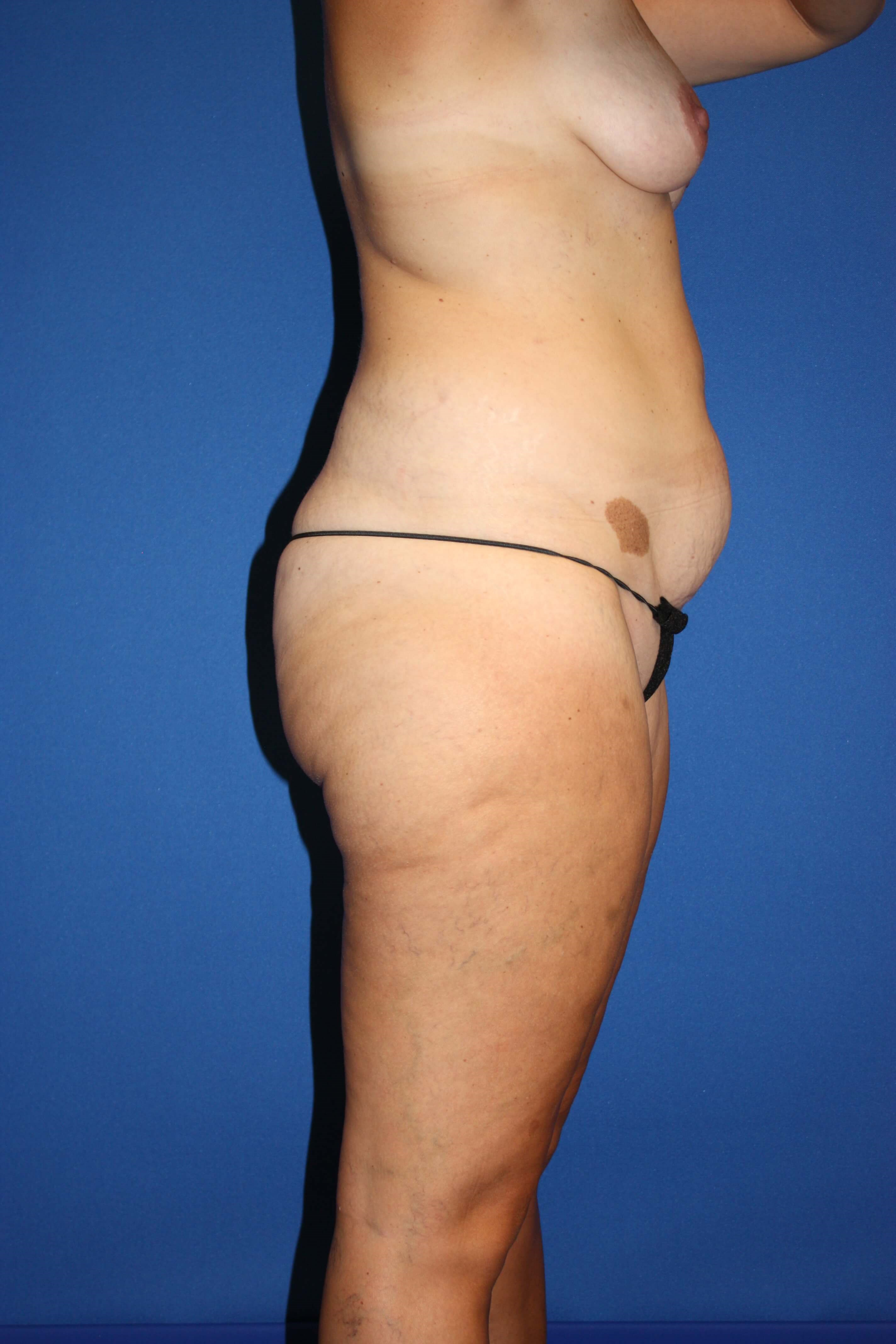 Tummy Tuck, Liposuction-Side Before