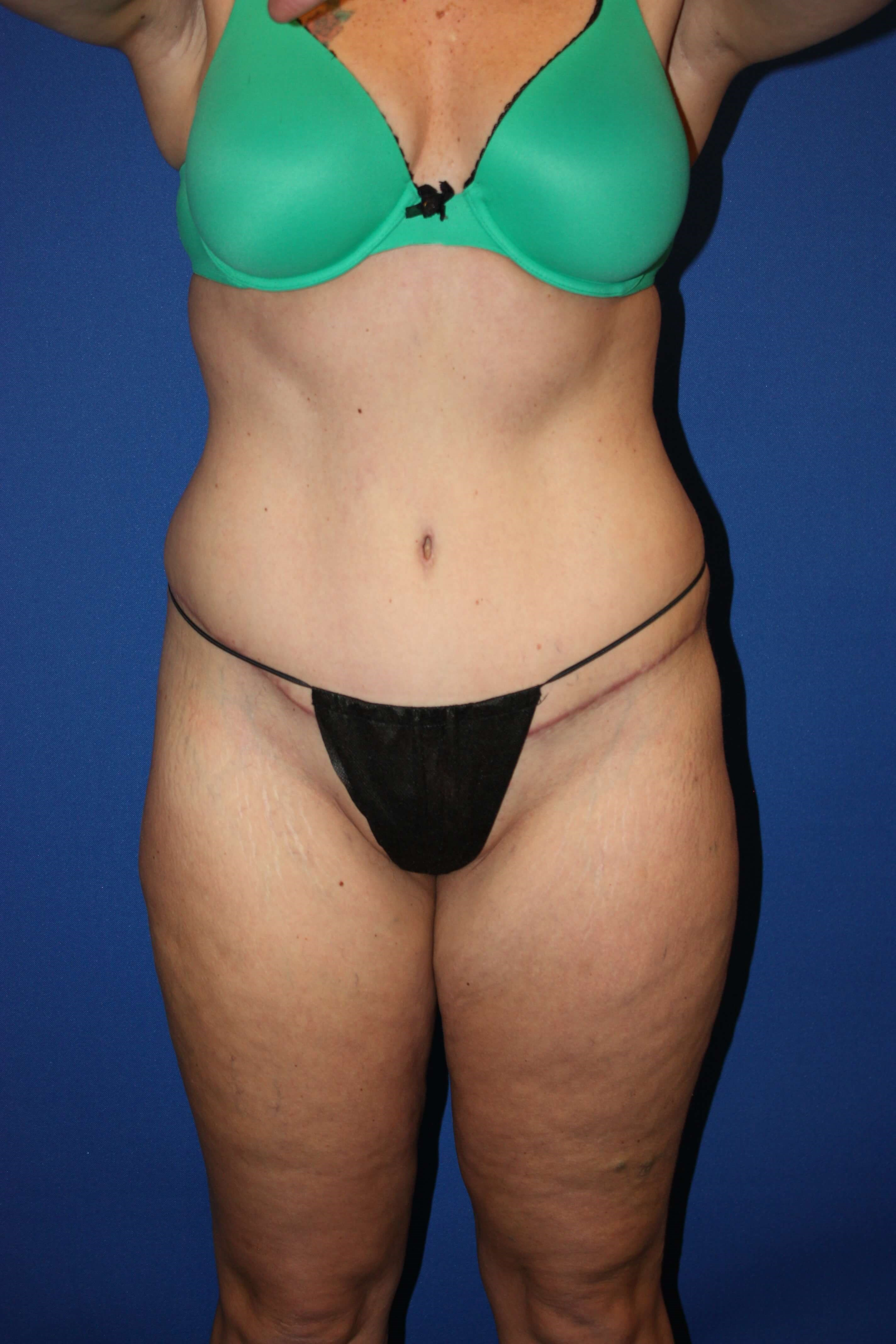 Tummy Tuck, Liposuction-Front After