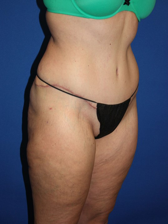 Tummy Tuck, Liposuction-Angled After