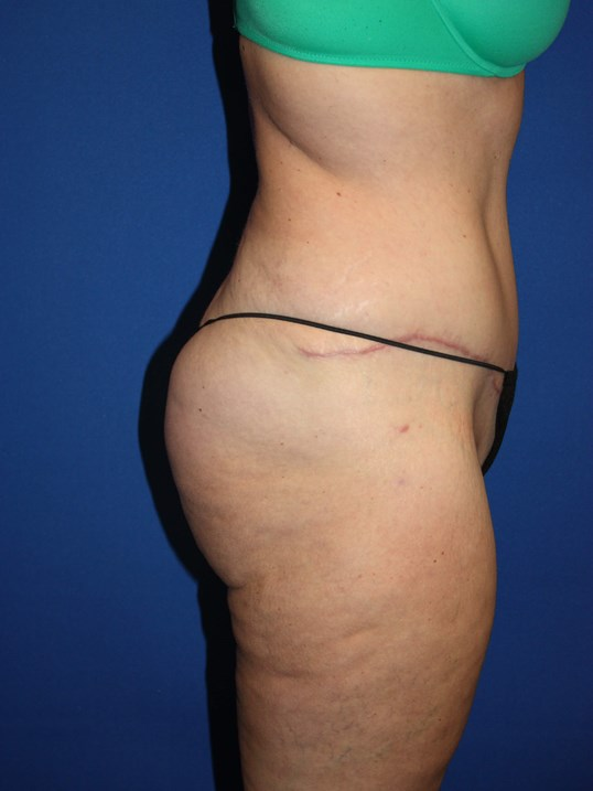 Tummy Tuck, Liposuction-Side After