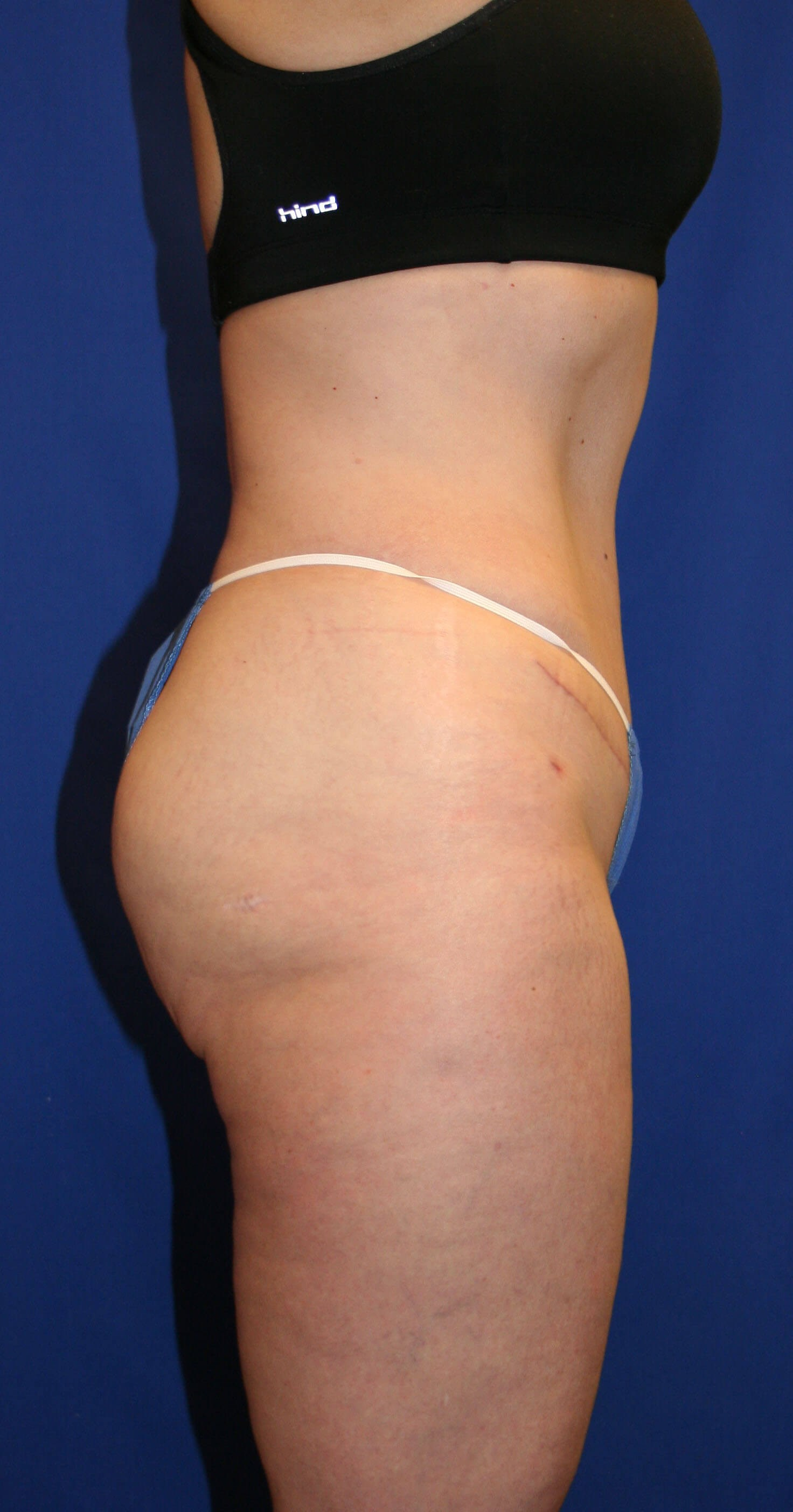 Tummy Tuck & Liposuction After