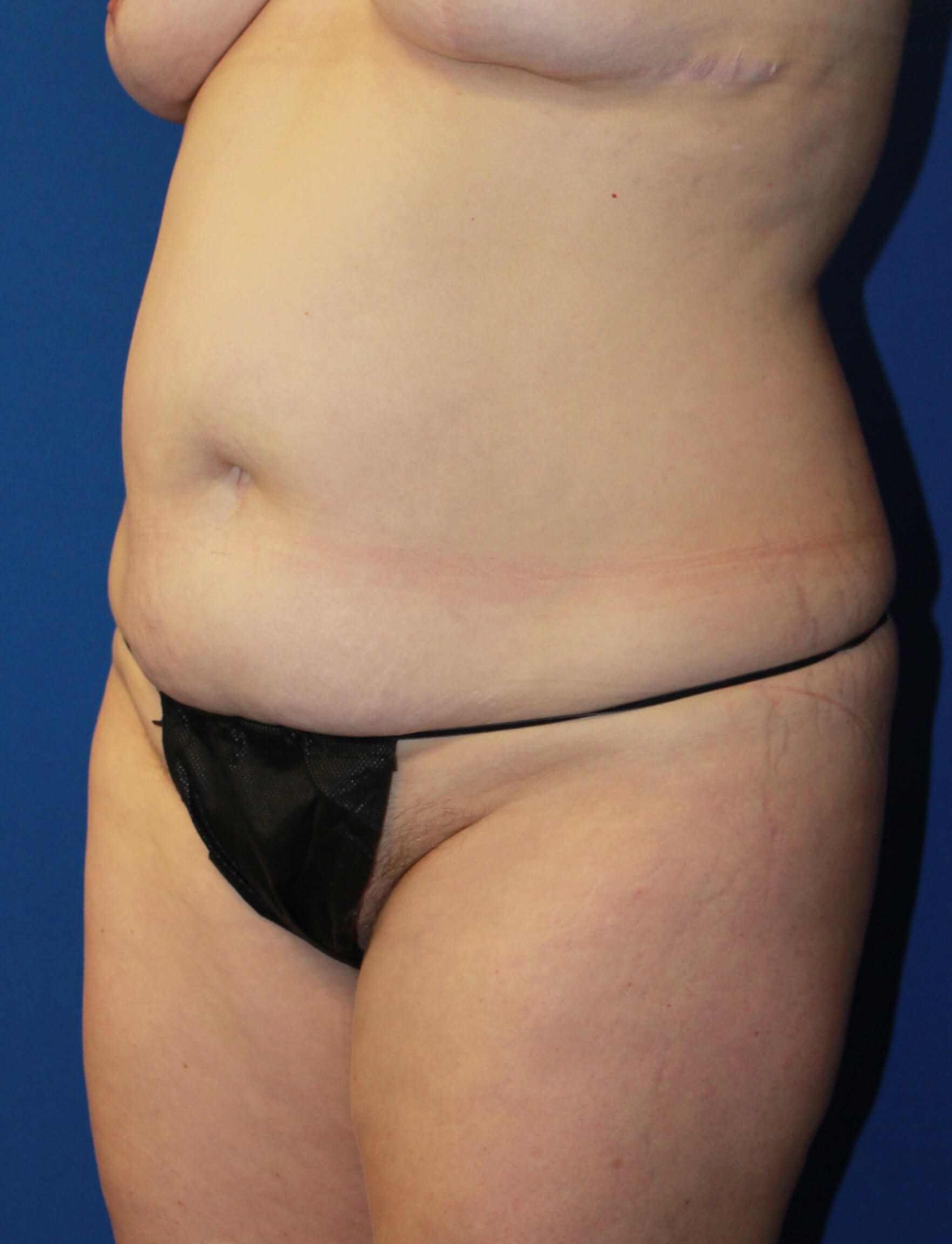 Extended Tummy Tuck & Lipo Before