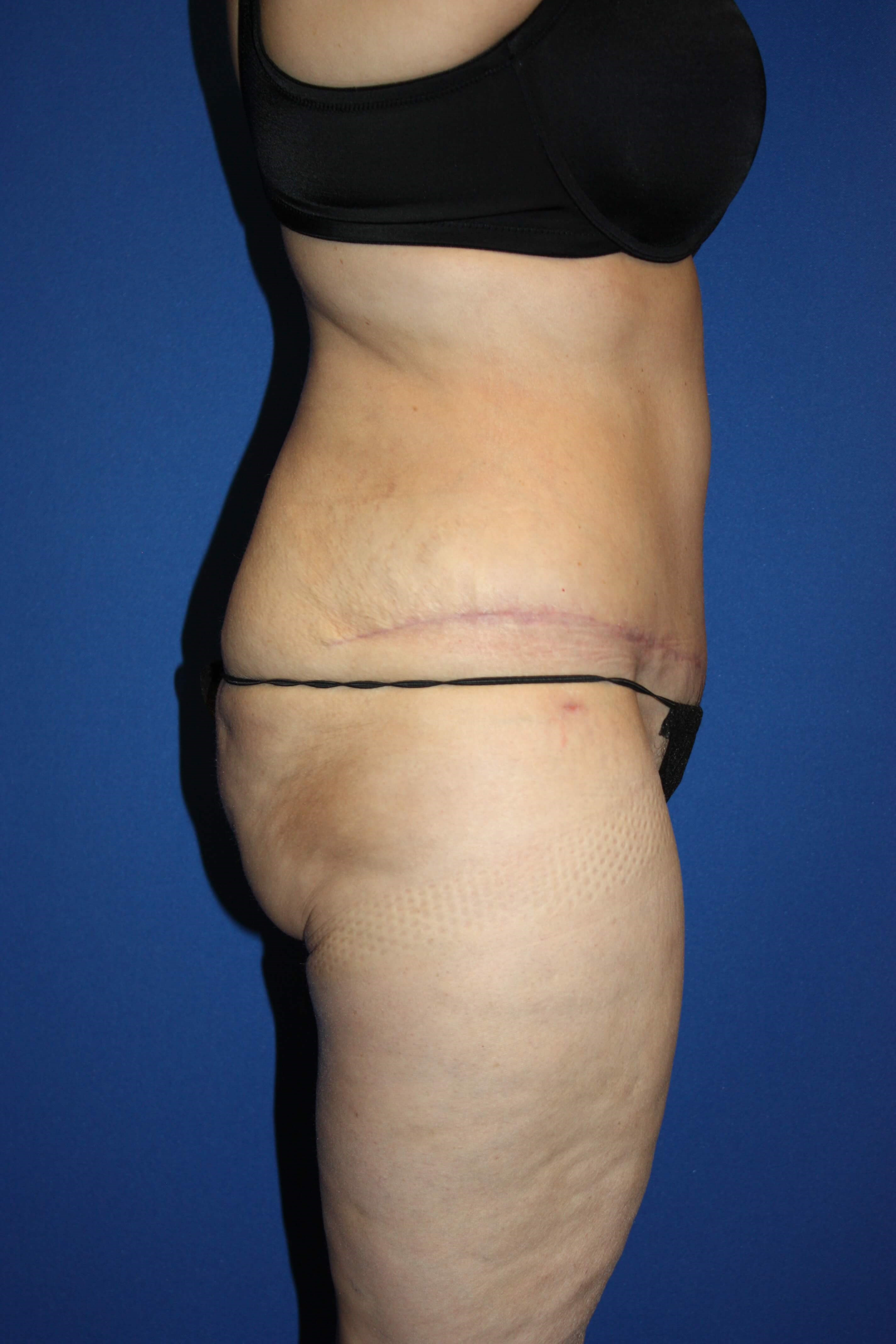 Extended Tummy Tuck & Lipo After