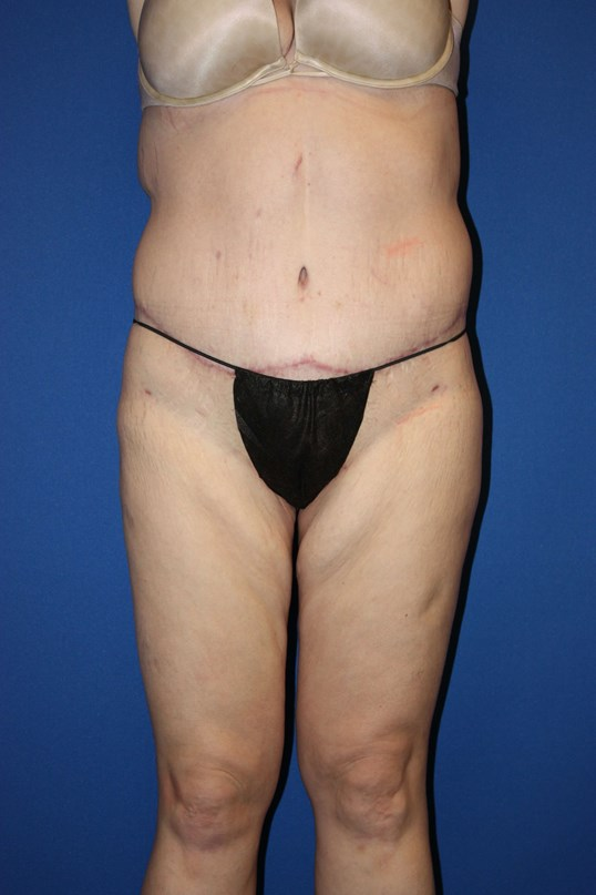 Circumferential Body Lift After