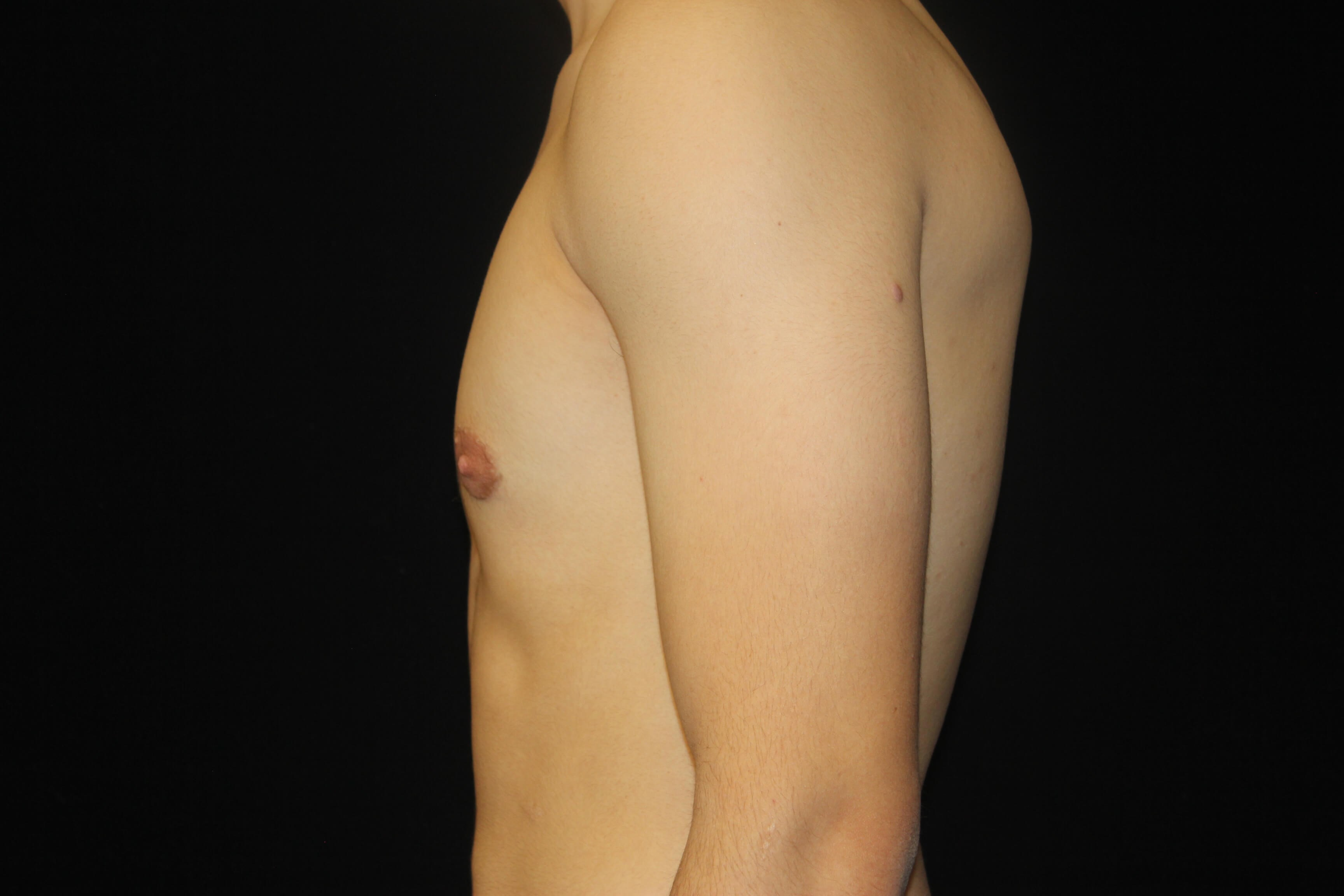 Male Breast Reduction After