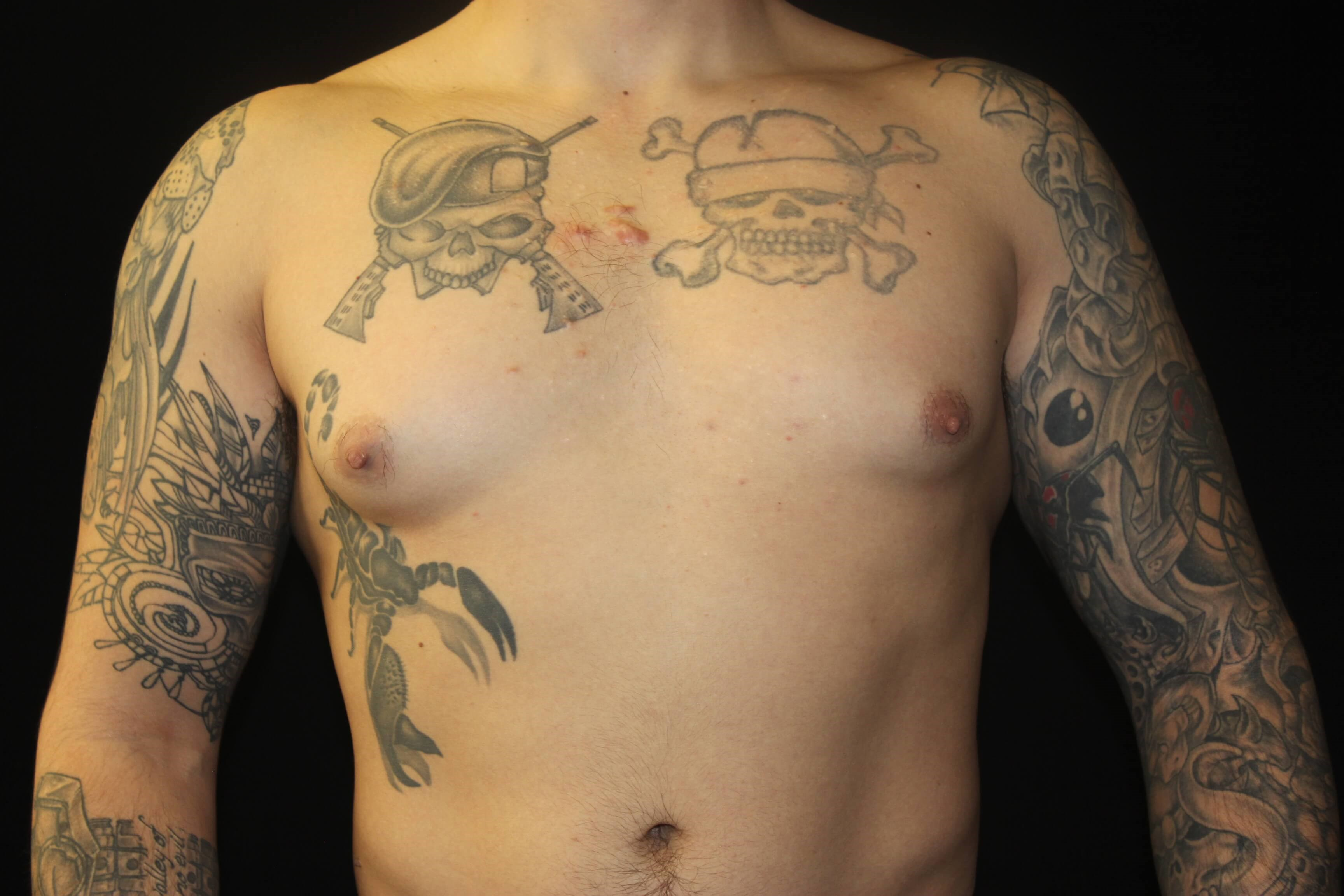 Male Breast Tissue Removal Before