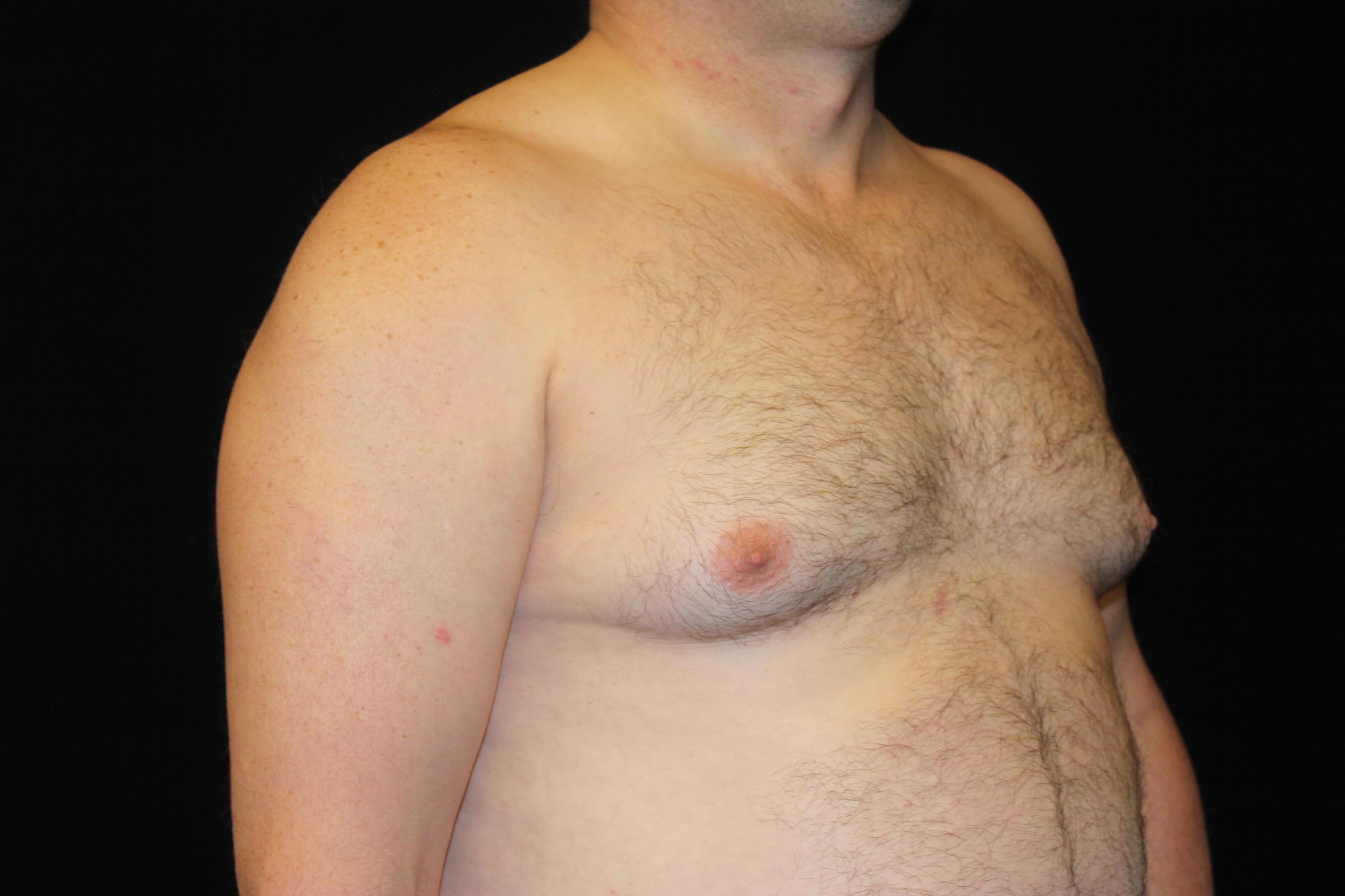 Male Breast Reduction Surgery Before