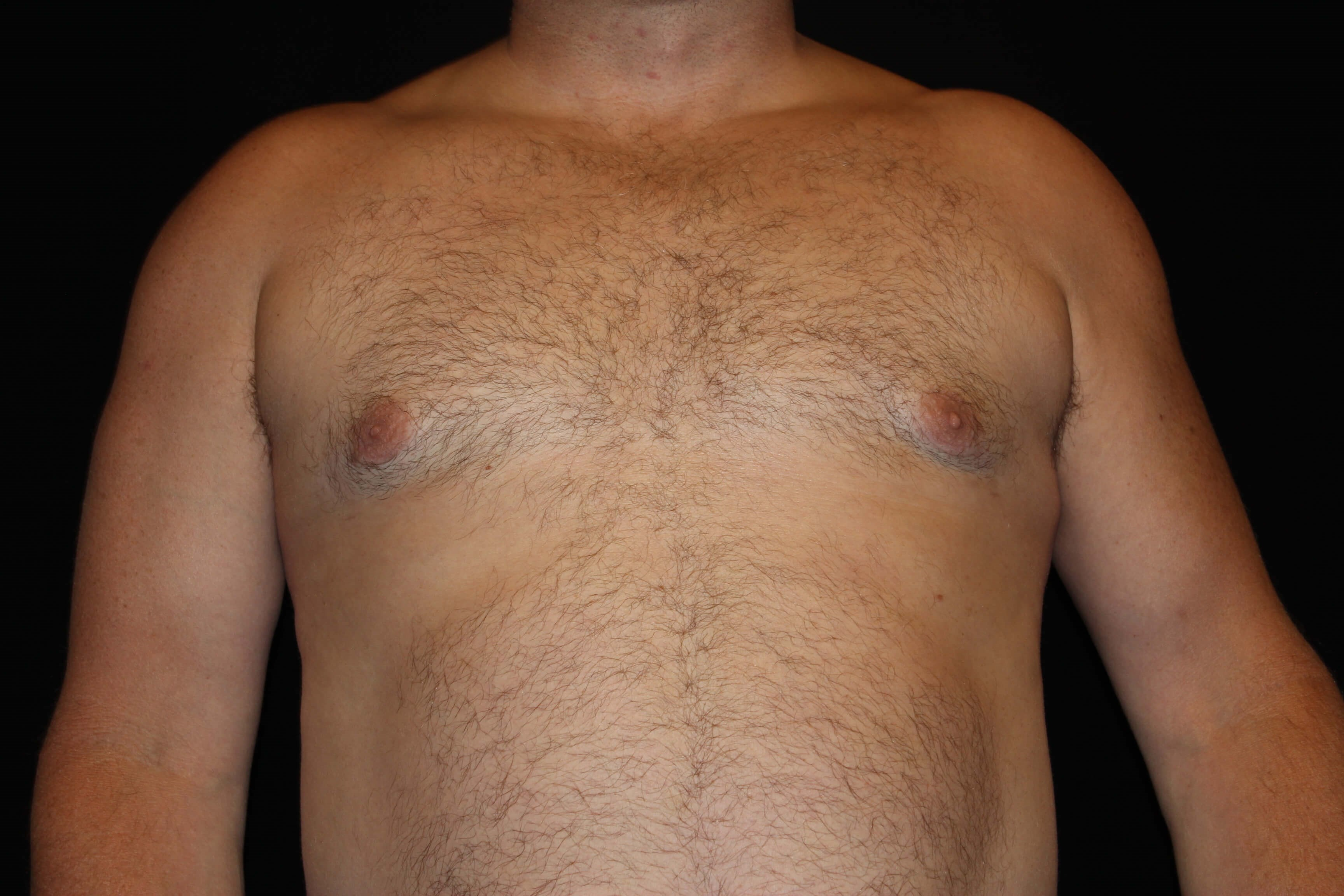 Male Breast Reduction Surgery After