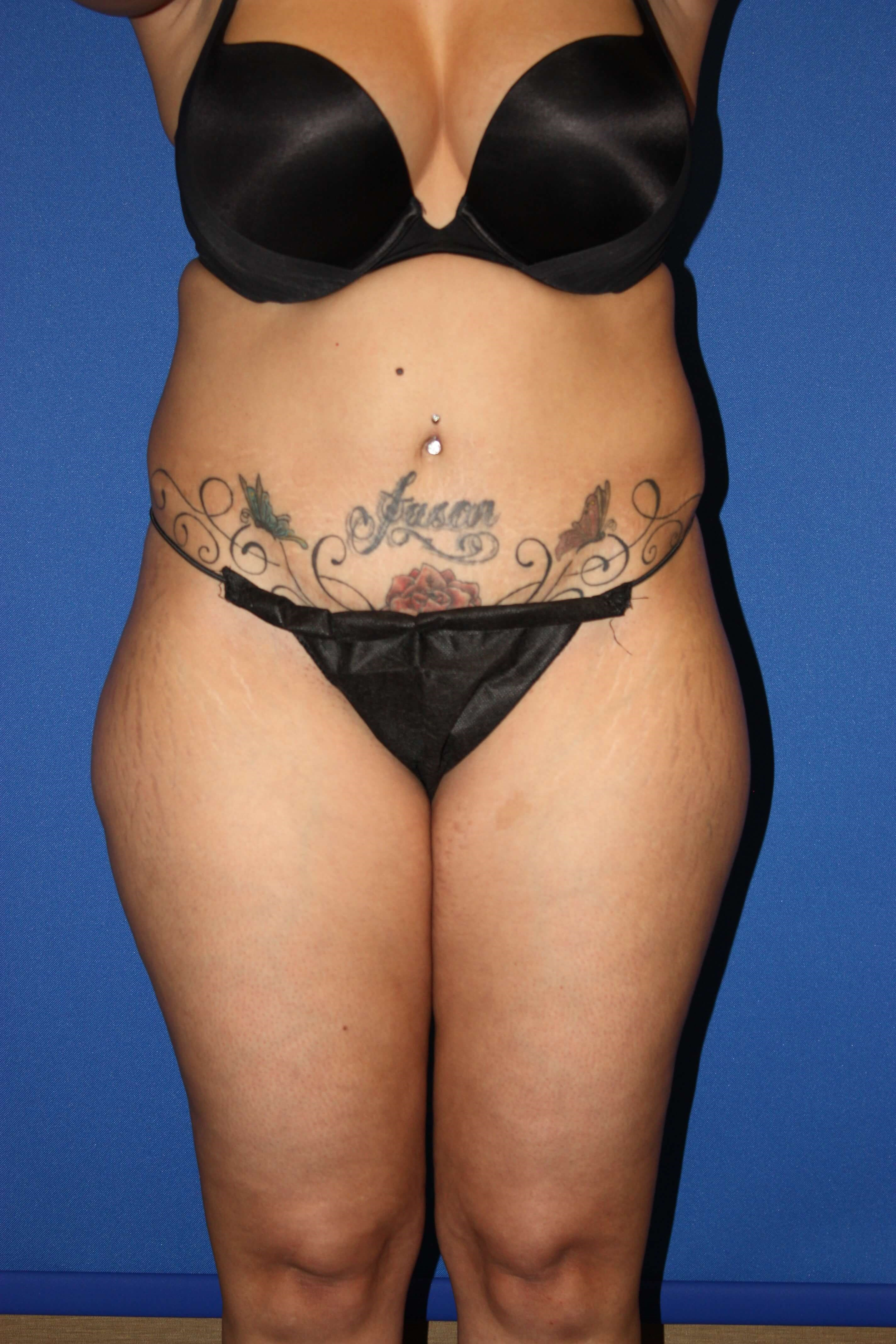 Liposuction of Flanks & Thighs Before