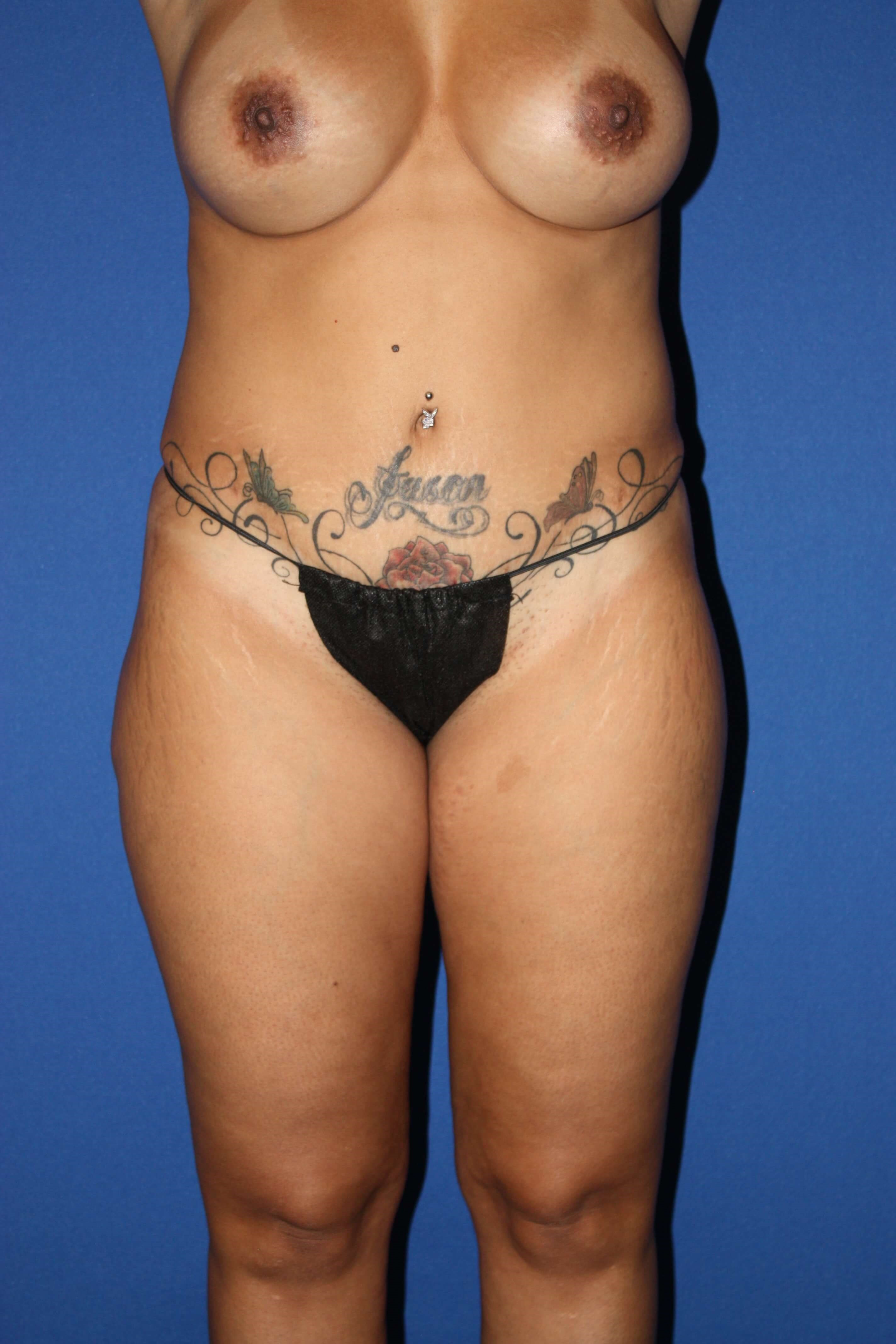 Liposuction of Flanks & Thighs After