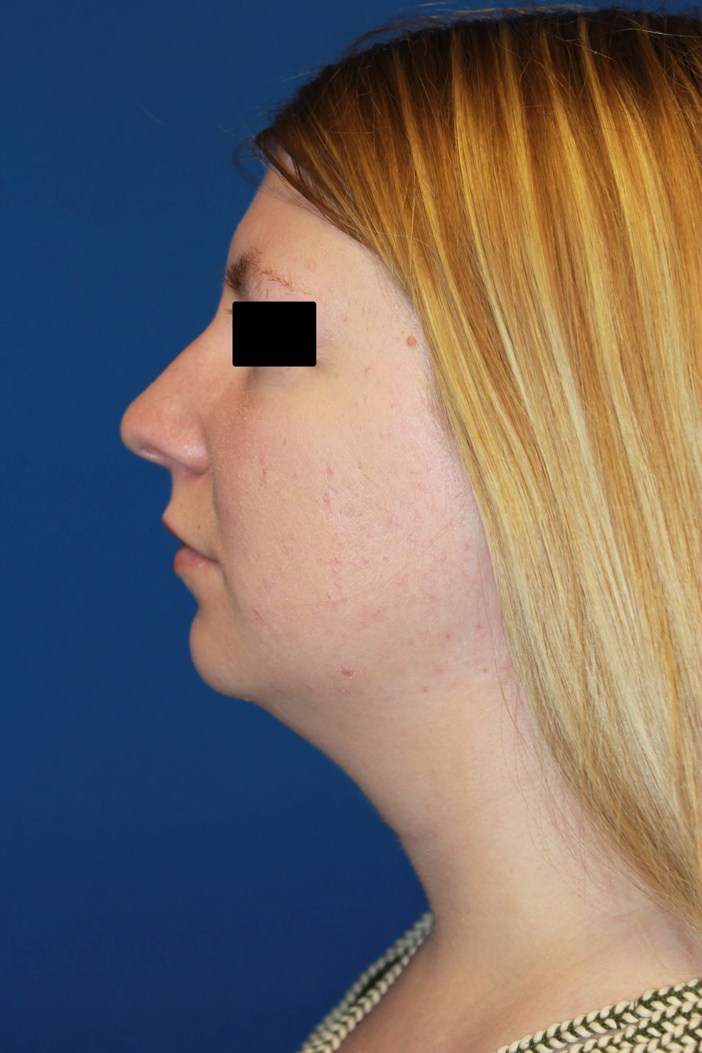 Rhinoplasty, Chin & Lipo Before