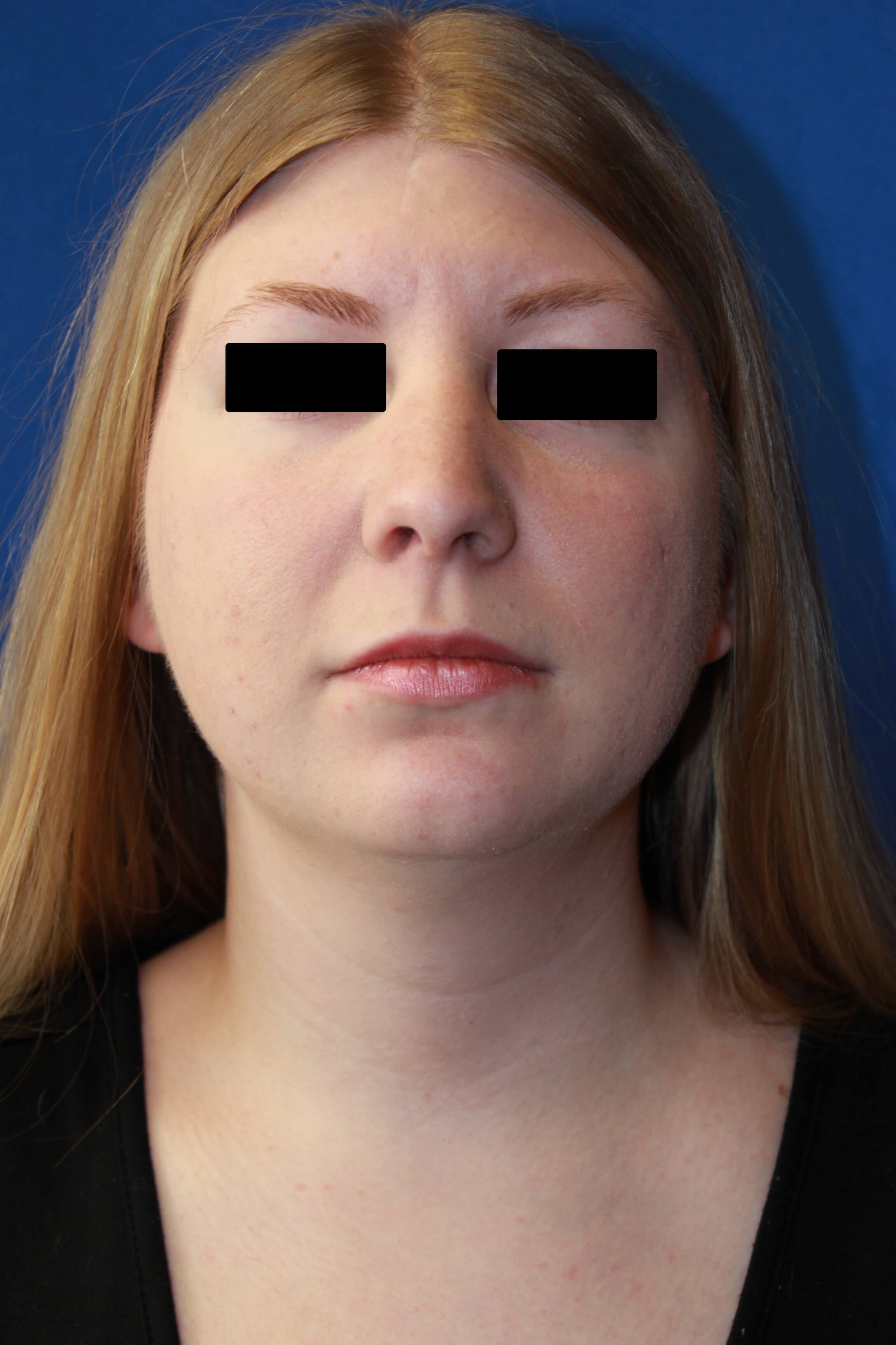 Rhinoplasty, Chin & Lipo After