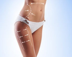 coolsculpting-colorado