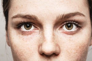 dermal-fillers-eyes